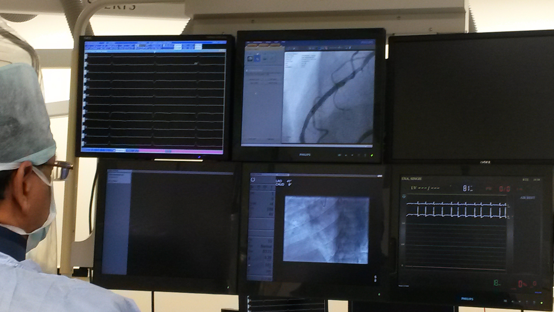 Dr Ravi Kishore performing angiogram at Health City Cayman Island PTCA